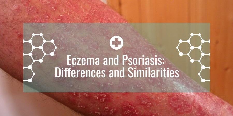 Eczema and Psoriasis: Differences and Similarities